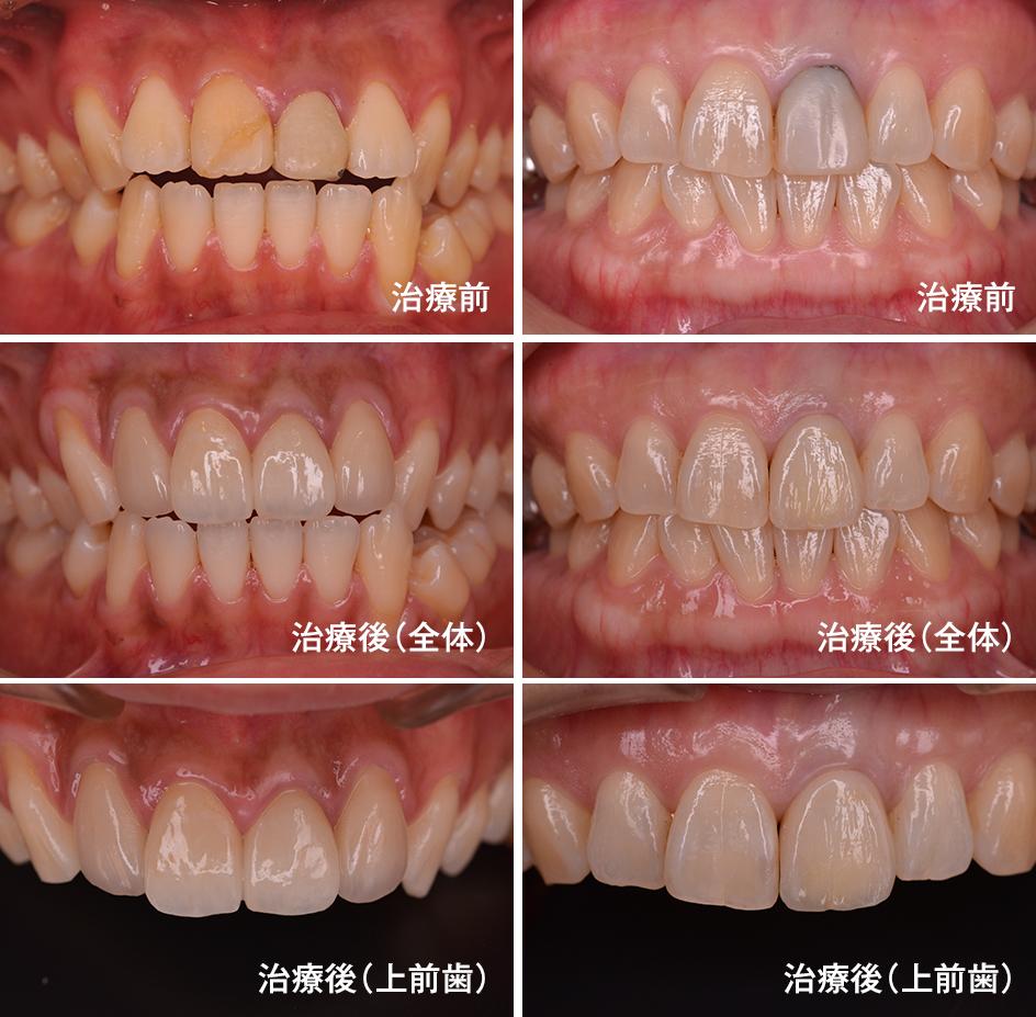 イメージ:審美歯科